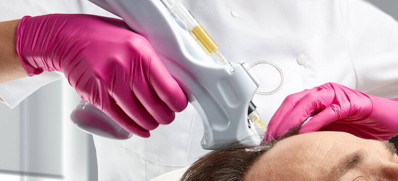 PRP Hair Rejuvenation Treatment